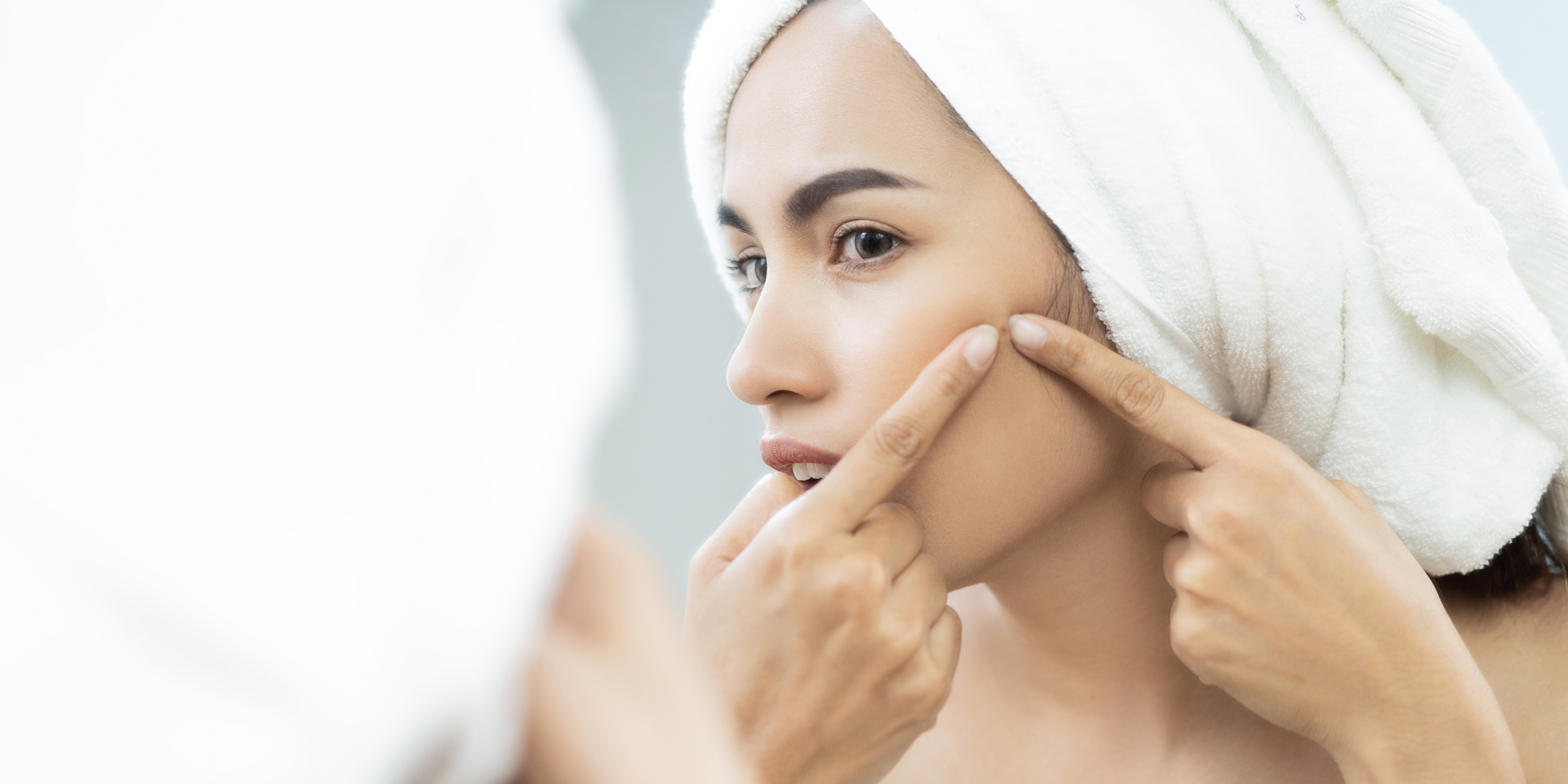 Your Guide To Acne Scarring