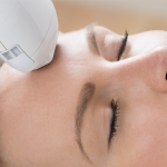 Why Laser Treatment Results Can Vary Based On Your Skin Tone