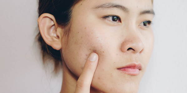 My skin is hyper-what?! Hyperpigmentation: Breaking down causes and treatments